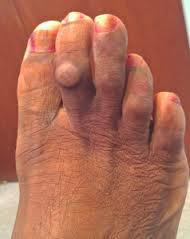tratamentul artrozei falangei degetelor de la picioare deteriorarea meniscului medial al tratamentului articulației genunchiului stâng