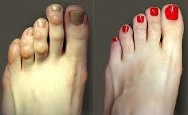 tratamentul artrozei falangei degetelor de la picioare durerea de durere rupe toate articulațiile