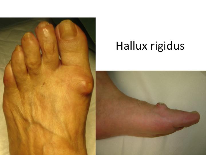 tratarea artrozei degetelor de la picioare smulgerea tratamentului articular